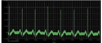 蛣2处理后心电信号波形